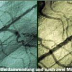 Neue Studienergebnisse zur Wirkung der Magnetfeldtherapie