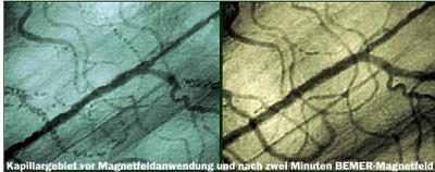 Berner Studie Mikrozirkulation 1
