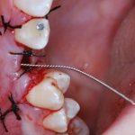 Bild Zahn 10
