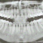 Magnetfeldtherapie nach chirurgischen Zahneingriffen