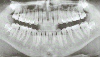 Präpoperatives Röntgenbild mit verlagertem Zahn 48