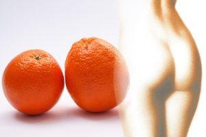 Orangenhaut Cellulite 273151_640