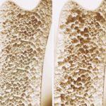 Osteoporose: Behandlung mit der Magnetfeldtherapie