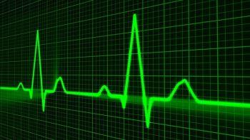 Herzrhythmusstörungen, Puls, Pixabay, Sekundentod