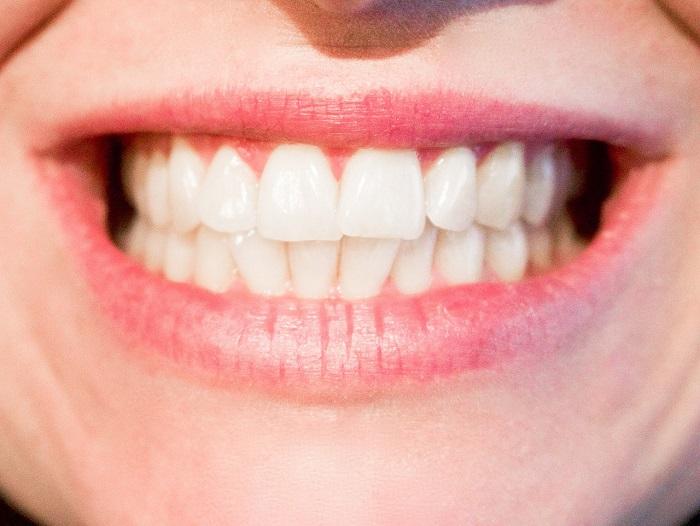 Ich möchte alle meine Zähne entfernt und ersetzt