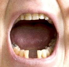 Partner/in finden trotz schlechter Zähne/ Mundgeruch? - Zahnmedizin - med1