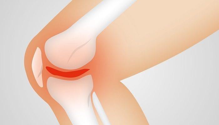 Positive Ergebnisse bei Arthrose und Arthritis mit der Magnetfeldtherapie