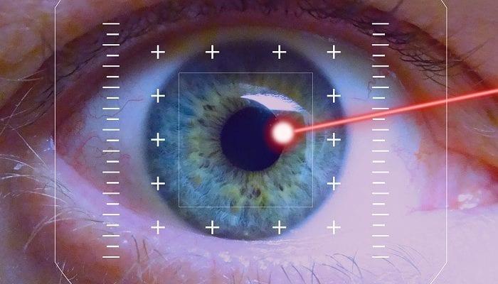 Auge bei einer Laseroperation