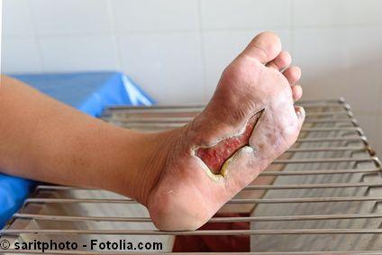 Offene Wund an der Fußsohle