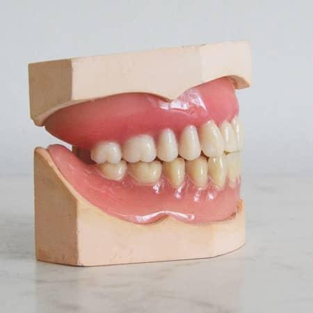 Ein Zahnabdruck wird dargestellt