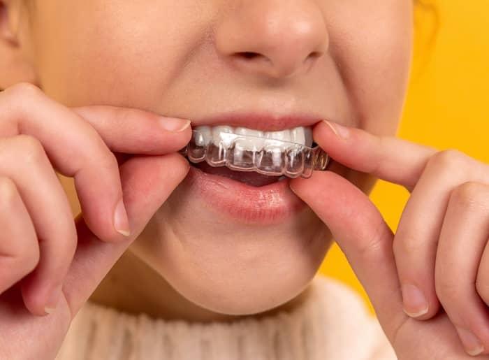 Eine Jugendliche legt Ihre durchsichtige Zahnspange (Invisalign) an